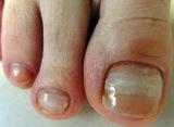 Поставям брекети ( скоби ) за корегиране на враснали нокти-Здраве и Красота